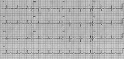ECG, normal rhythm