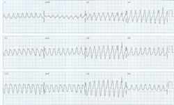 ECG, abnormal rhythm