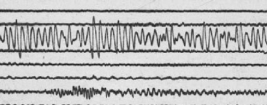 Seismogram of harmonic tremor recorded on April 2 at seismic station RAN.  Click here for a larger version of this image.