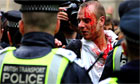 Wounded Protester at g20
