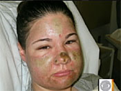 Acid Attack Hoax Woman Charged with Theft