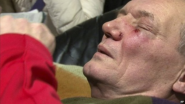 One of the presidential candidates in Belarus, Vladimir Neklyaev, with wounds to his face.