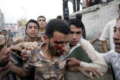 المحلة الكبري تشهد أشد مظاهر العنف في إضراب اليوم