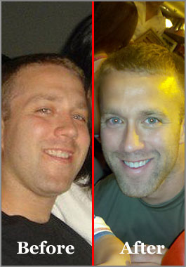 Tucker Max before and after