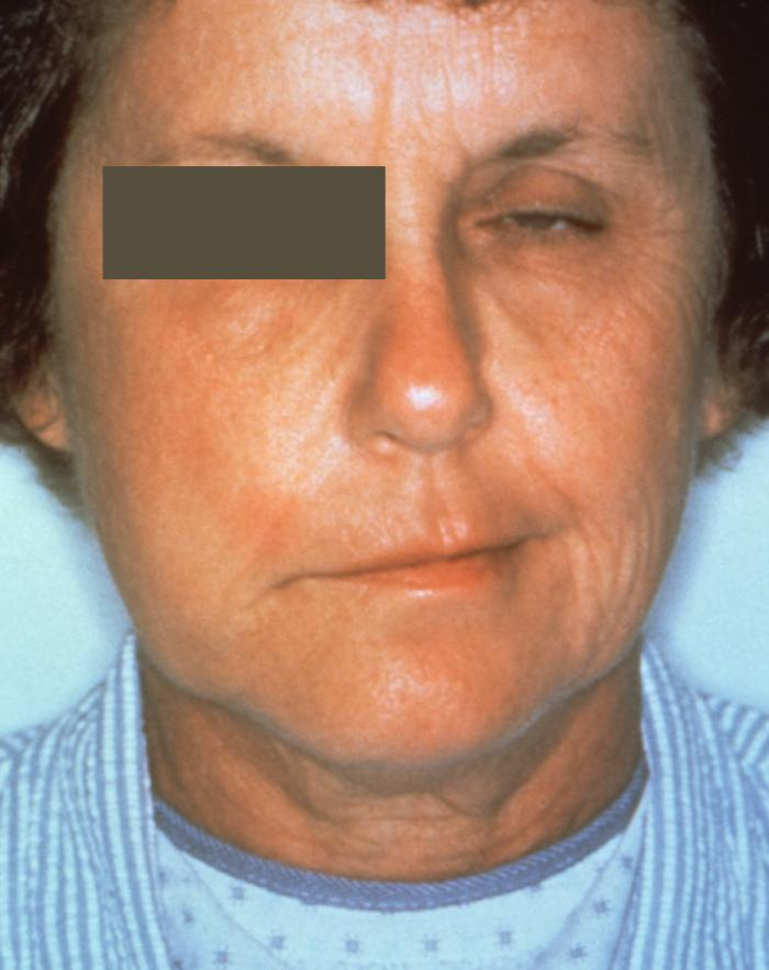 Lyme Symptoms - Nervous System