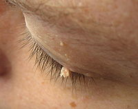skin tags causes