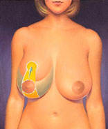 breast_reduction-2