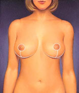 breast_reduction-4