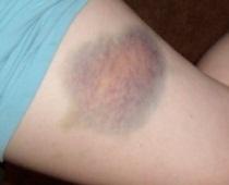 Roller derby bruises
