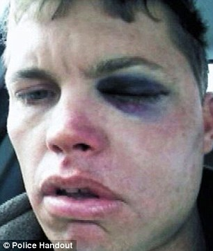 Knockout: John Applewhite, 34, was punched in Long Island by a man in a random attack, breaking his jaw