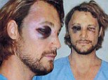 'Olivier Martinez threatened to kill me': Gabriel Aubry displays painful black eye and cut face in shocking images as he obtains his OWN restraining order