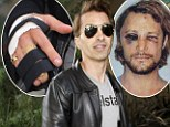 Olivier Martinez acquires a brace for his damaged hand (which is no surprise given the state of Gabriel Aubry's face)