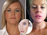 How cosmetic fillers can destroy your looks: They can turn skin blue and lumpy, leave you blind, and experts warn they could be a bigger scandal than faulty breast implants
