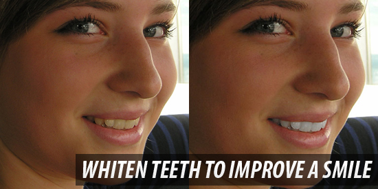 Whiten Teeth to Improve a Smile in Photoshop