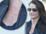 Kristin Davis, 47, displays painful-looking red face as she emerges from Chinese health clinic