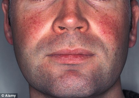 Rosacea has been linked to a number of factors such as sun damage to skin tissue, leading to redness, thread veins and inflammation