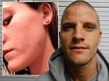 Pictured: Teen Mom 2 star Jenelle Evans' bruised jawline after her estranged husband is arrested for assaulting her