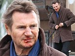 Battered and bruised: Liam Neeson on the set of his new film