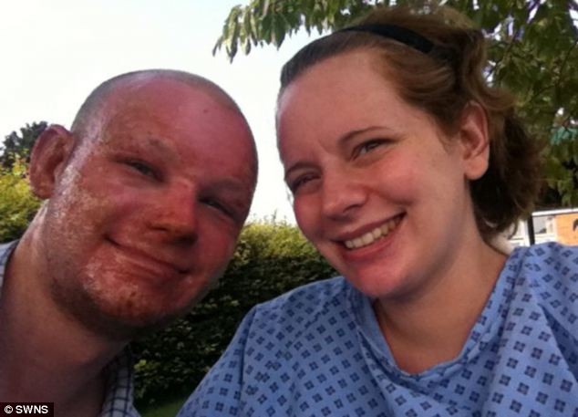 The couple kept a photo diary of their time in hospital together. This shows the progress made on Mr Brain's face with the burns already healing five days after the blast