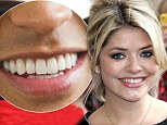 White teeth can make you look five years younger... and even get you a job (and Holly Willoughby has the most sought-after smile)