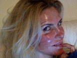 'It's been so depressing': Brandi Glanville now reveals her severely burnt face after undergoing treatment for discoloration of the skin