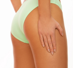 Therapy for Treating Cellulite