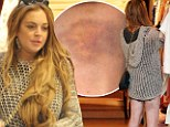 It's not retail therapy she needs: Poorly looking Lindsay Lohan shops with her sister sporting horrific bruises on her pale legs
