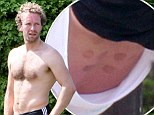 Was that your wife's idea? Round marks on Coldplay's Chris Martin's back look like cupping marks seen on Gwyneth Paltrow