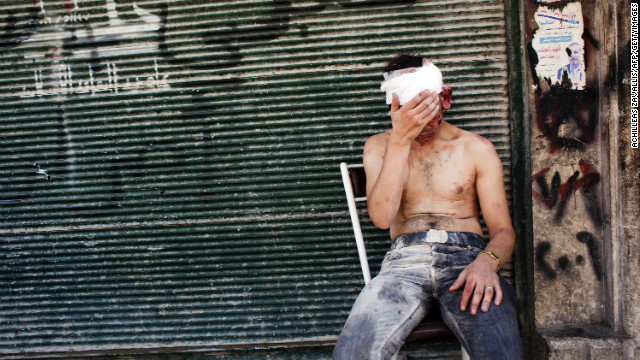 A Syrian man wounded by shelling sits on a chair outside a closed shop in Aleppo on September 4.