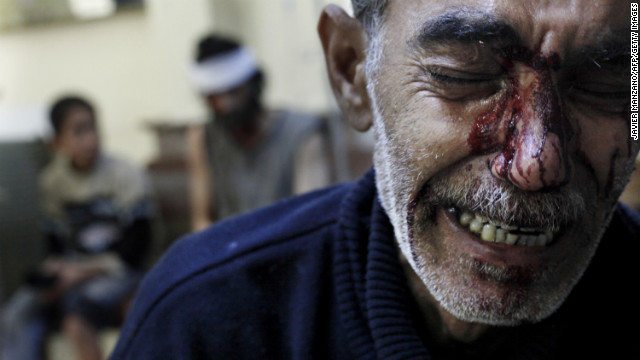 A man cries while being treated in a local hospital in a rebel-controlled area of Aleppo on October 31.
