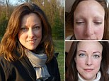 'When my eyebrows fell out I felt my life was over': Graduate, 34, whose brows went bald after Lupus says face tattoos saved her sanity