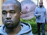 Ouch! A glum Kanye West sports ghastly bump on his head one day after embarrassing signpost incident