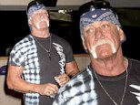 'Skinned like a cat': Hulk Hogan severely burns his hand in accident in radiator explosion