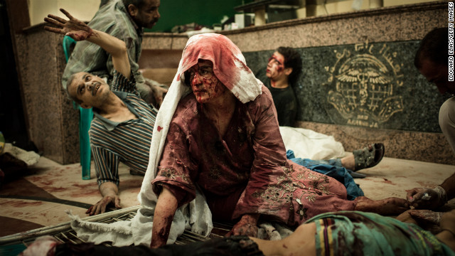 Wounded civilians wait in a field hospital after an air strike on August 21 in Aleppo.