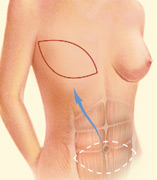 breast_reconstruction-1