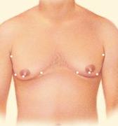 gynecomastia-4