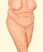 body-lift-surgeon