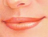 injectable_fillers-5