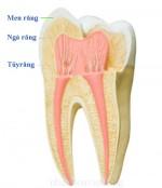 Chua tuy rang - Chữa tủy răng
