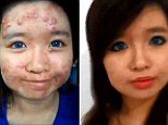 Acne cover up