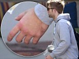 Did he get into a fight? Robert Pattinson sports swollen left hand and suspiciously dark eye while lunching in Los Angeles