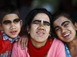 Fresh faces: Devi Budhathoki, 38, her daughter Manjura, left, 14, and son Niraj, 12, smile and laugh after undergoing hair removal treatment at Dhulikhel Hospital in Kavre, on the outskirts of Kathmandu