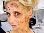 What happened to Sarah Michelle Gellar? Actress reveals bloody and scratched face (but it's all for her new television series The Crazy Ones)