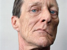 About Face: Alluring Portraits of People with Facial Paralysis