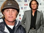'He likes to be pretty': Bruce Jenner has 'laser hair removal on his face' in his quest for 'a perfect appearance'