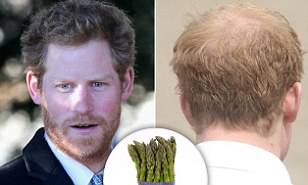 Prince Harry's 'baldness cure'