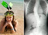 Rebecca Berry before and after her treatment for scoliosis