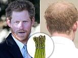 Prince Harry's 'baldness cure'
