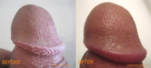 pearly penile papules home remedies