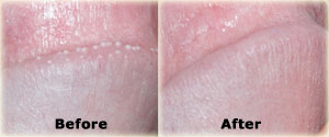 pearly penile papules treatment